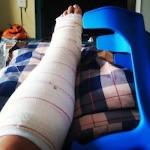 spraincrutches