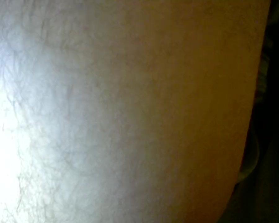 Eric midget pic
