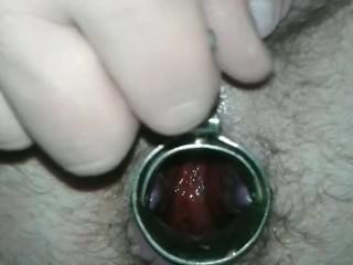 speculum anal